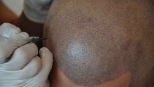 Micropigmentation of the skin on the head
