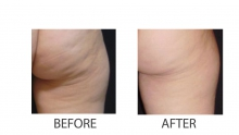 The most effective treatments for cellulite in the office of aesthetic medicine