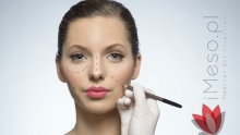 Fillers with hyaluronic acid